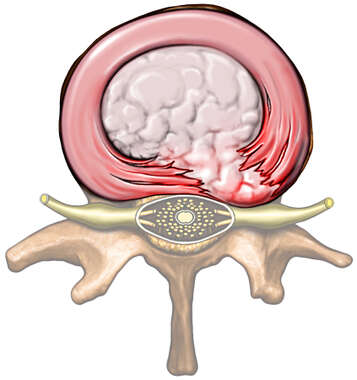 Lumbar Vertebra with Herniated Disc, Superior View