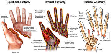 Traumatic Left Hand Amputation