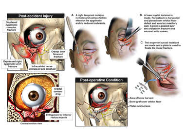 Right Orbital and Facial Injuries with Surgical Fixation