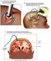 Recommended Procedure to Monitor and and Treat Intracranial Pressure