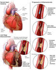 Progression of Atherosclerosis in the Coronary Arteries