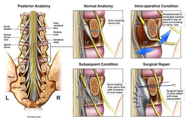 Lumbar Spine Surgery with Resulting Dural Tear Requiring Additional Repairs