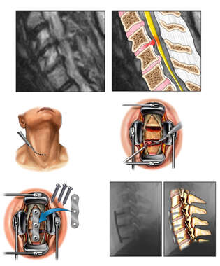 Cervical Spine Injuries with Double Level Surgical Fusion