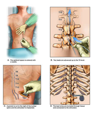 Continued Low Back Pain with Permanent Implantation of Spinal Cord Stimulator