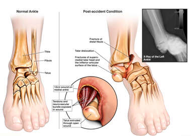 Traumatic Ankle Injuries