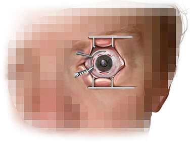 Eye Surgery - Incisions for Vitrectomy