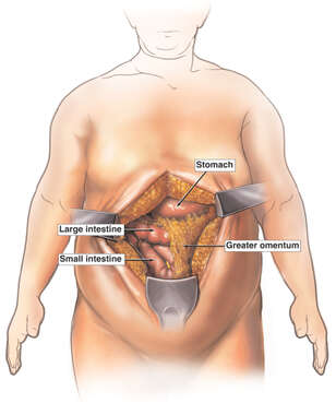 Surgical Exposure for Gastric Bypass