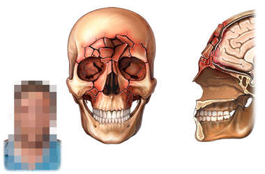 Traumatic Facial Injuries
