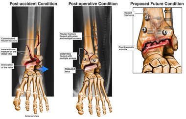 Progression of Left Ankle Condition