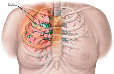 Enlarged Thoracic Lymph Nodes