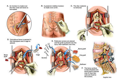 Lumbar Discectomy and Interbody Fusion
