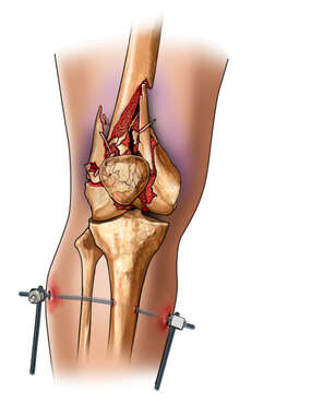 Comminuted Fracture of Distal Femur