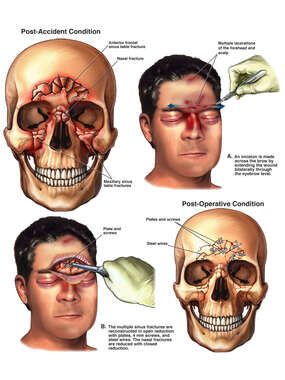 Post-accident Facial Fractures with Surgical Repairs