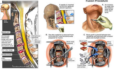 Cervical Spine Injuries with Proposed Two-Level Fusion Procedure