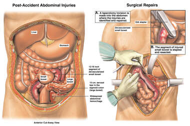 Abdominal Injuries with Surgical Repairs
