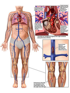 Pulmonary Thromboembolism Arising From the Deep Veins of Both Legs