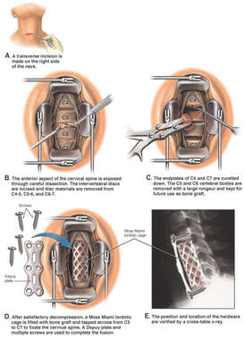 C4-7 Cervical Vertebrectomy and Fusion