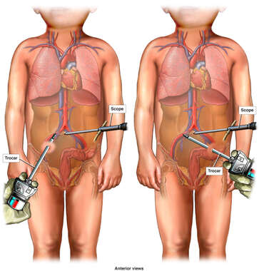 Laparoscopic Trocar Insertions with Severe Vascular Damage
