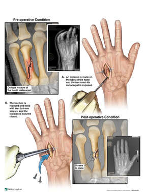 Left Fourth Metacarpal Fracture with Surgical Fixation