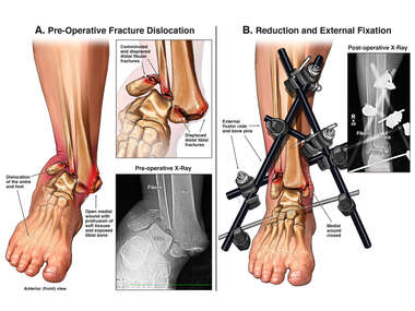 Right Ankle Fracture Dislocation with External Fixator Placement