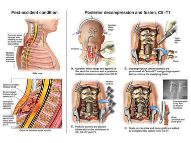 Severe Cervical Spine Injuries Resulting in Quadriplegia and Subsequent Repair