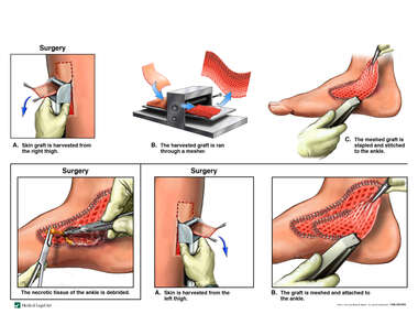 Additional Surgical Repairs of Right Foot
