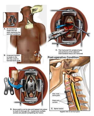 Anterior Cervical Discectomy, Corpectomy and Fusion