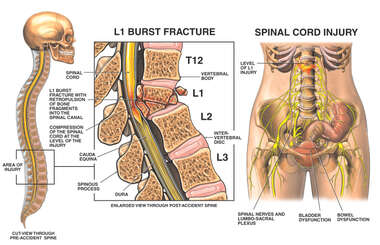 L1 Compression Burst Fracture with Spinal Cord Injury