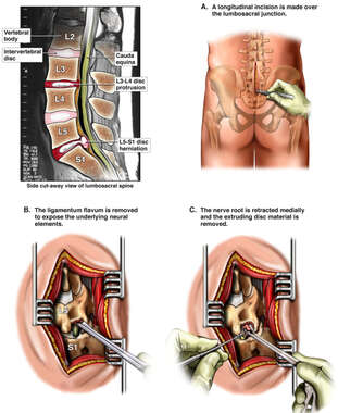 Pre-operative Injuries to the Lumbo-sacral Spine with Hemilaminotomy Decompression Surgery