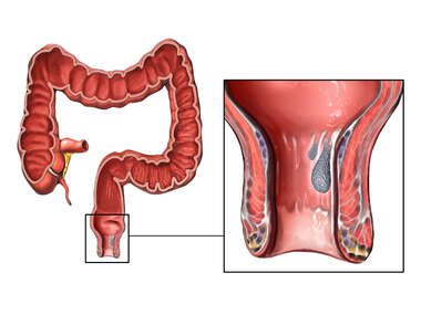 Colon Hemorrhoid Polyp