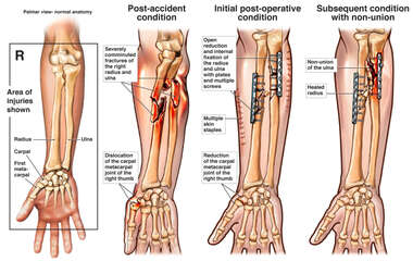 Radial and Ulnar Fracture Fixation