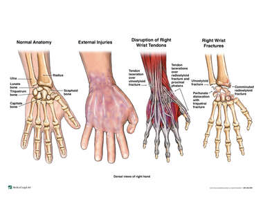Post-accident Injuries of the Right Wrist