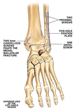 Post-operative Condition of Left Ankle
