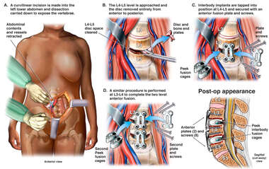 Double Level Anterior Discectomy and Fusion Procedure