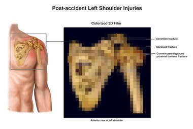 Post-accident Left Shoulder Injuries