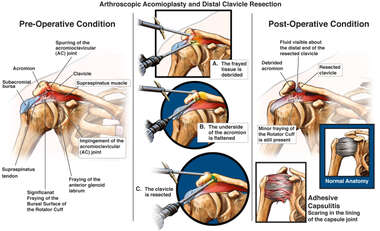 Arthroscopic Acromioplasty and Distal Clavicle Resection