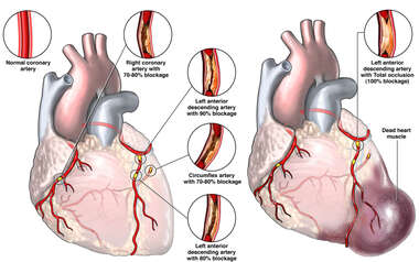 Failure to Diagnose and Treat Coronary Artery Disease