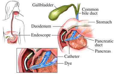 Cholangiogram Gallstone Testing Procedure