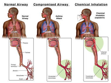 Normal Airway, Compromised Airway, Chemical Inhalation