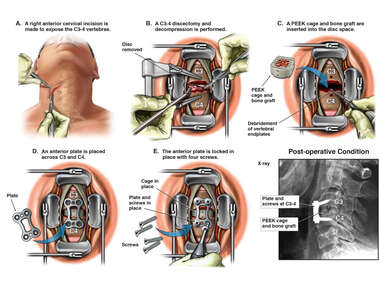 C3-4 Cervical Decompression and Fusion with Instrumentation
