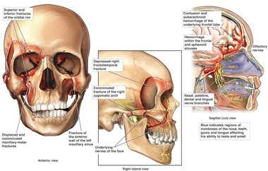 Facial Fractures resulting in Brain Damage