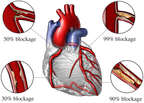 Classification of Coronary Artery Disease