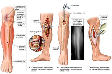 Right Leg Injuries with Initial Surgical Repairs