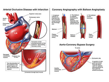 Coronary Occlusion and Myocardial Infarction with Possible Surgical Interventions