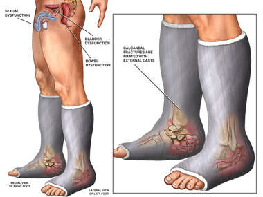 Fixation of Feet and Lower Leg Fractures
