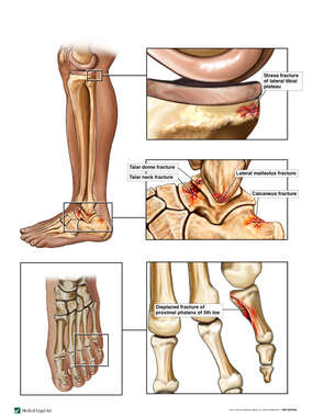 Left Knee, Ankle and Toe Fractures