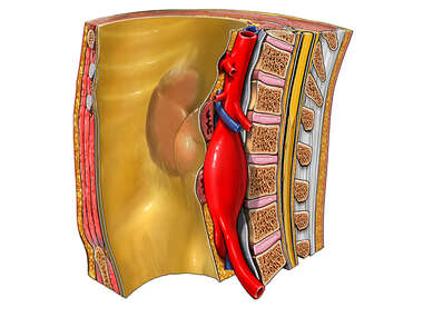 Abdominal Aortic Aneurysm, Cut-away View