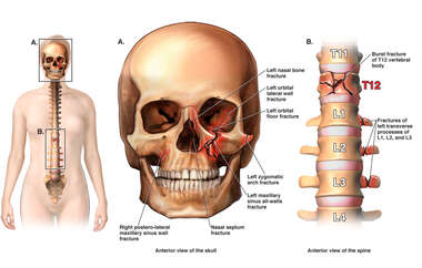 Traumatic Spine and Facial Injuries