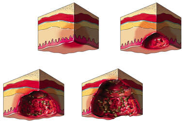 Pressure Sores: Four Stages