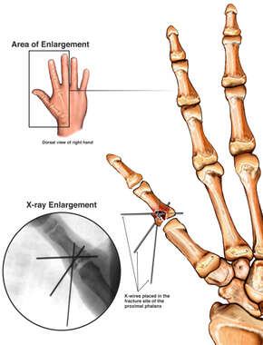 Thumb Fracture Fixation